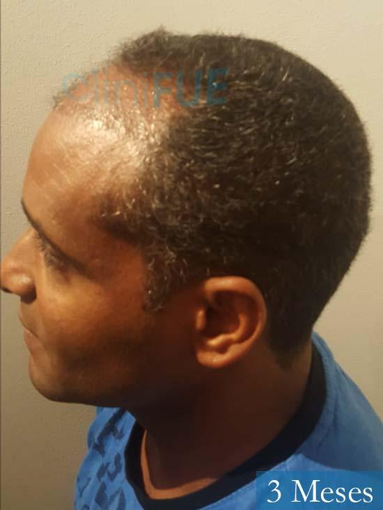 Juan Manuel 52 años injerto capilar turquia primera operacion 3 meses 4