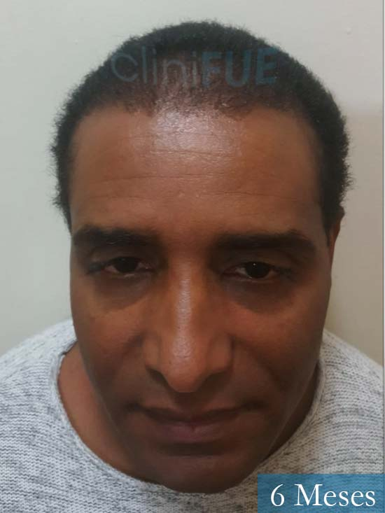 Juan Manuel 52 años injerto capilar turquia primera operacion 6 meses 1