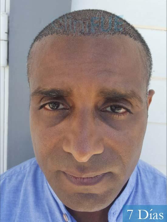 Juan Manuel 52 años injerto capilar turquia primera operacion 7 dias 1