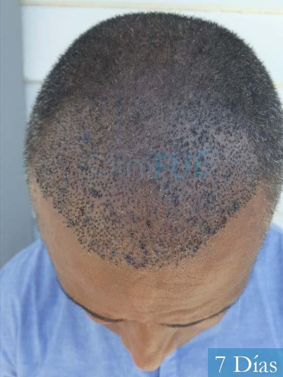 Juan Manuel 52 años injerto capilar turquia primera operacion 7 dias 2
