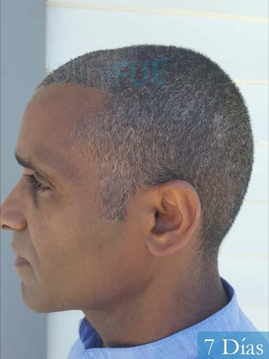 Juan Manuel 52 años injerto capilar turquia primera operacion 7 dias 5
