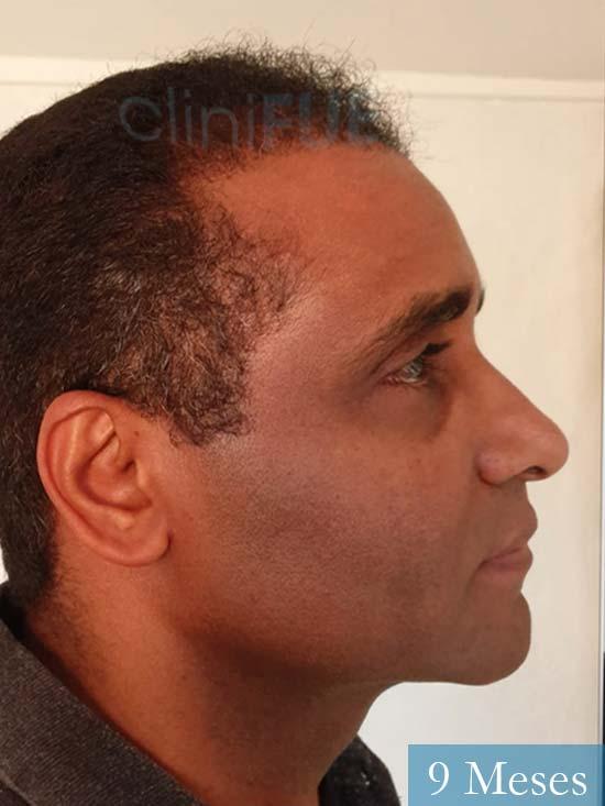 Juan Manuel 52 años injerto capilar turquia primera operacion 9 meses 3