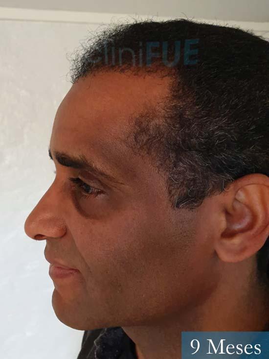 Juan Manuel 52 años injerto capilar turquia primera operacion 9 meses 4