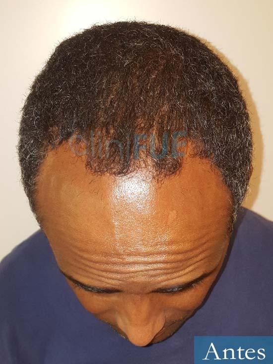 Juan Manuel 52 años injerto capilar turquia primera operacion antes 2