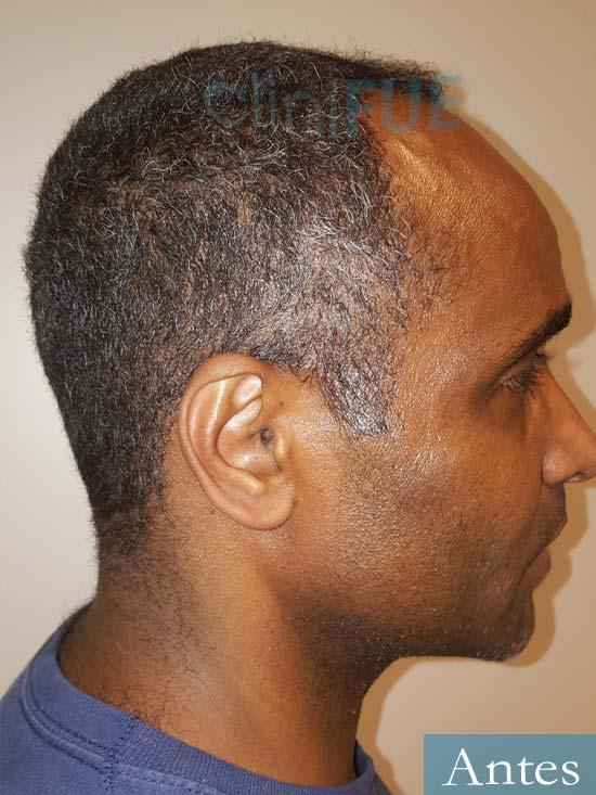 Juan Manuel 52 años injerto capilar turquia primera operacion antes 4