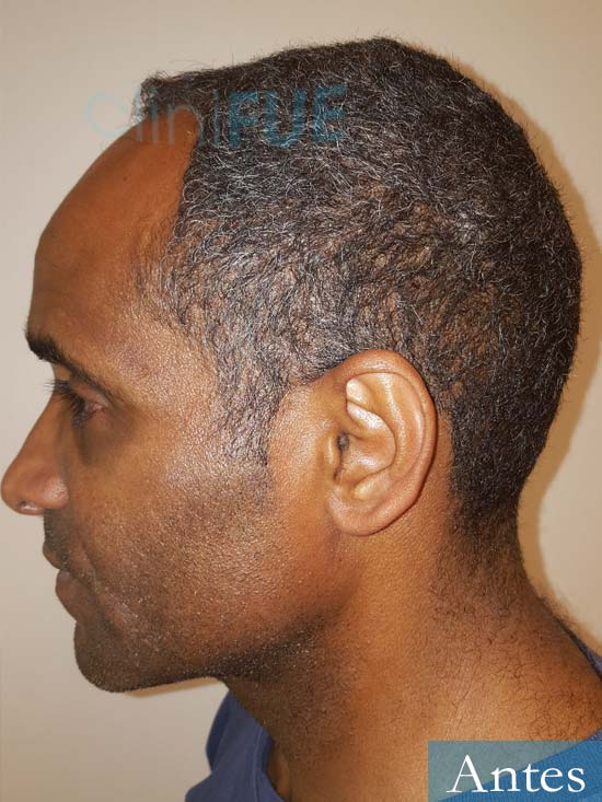 Juan Manuel 52 años injerto capilar turquia primera operacion antes 5
