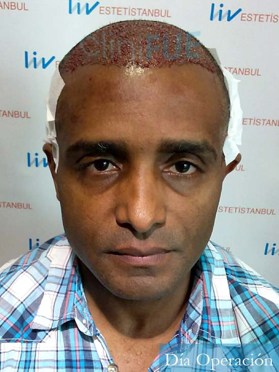 Juan Manuel 52 años injerto capilar turquia primera operacion dia operacion 1