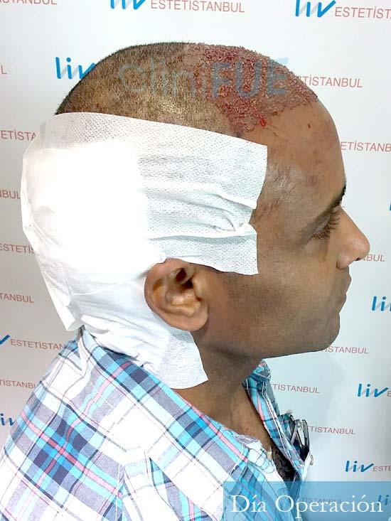 Juan Manuel 52 años injerto capilar turquia primera operacion dia operacion 3