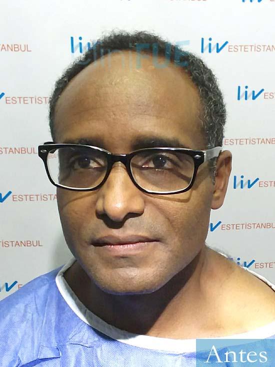 Juan Manuel 52 años injerto capilar turquia primera operacion dia operacion antes