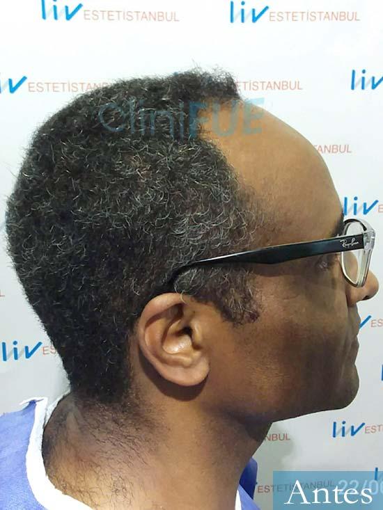 Juan Manuel 52 años injerto capilar turquia primera operacion dia operacion antes 2