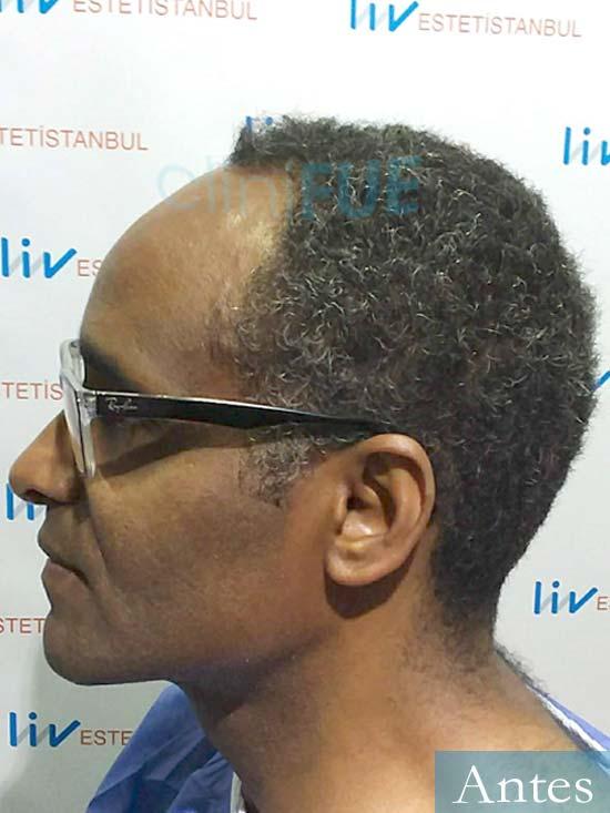 Juan Manuel 52 años injerto capilar turquia primera operacion dia operacion antes 3
