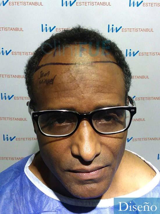 Juan Manuel 52 años injerto capilar turquia primera operacion dia operacion diseno 1