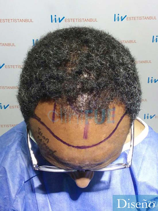Juan Manuel 52 años injerto capilar turquia primera operacion dia operacion diseno 2