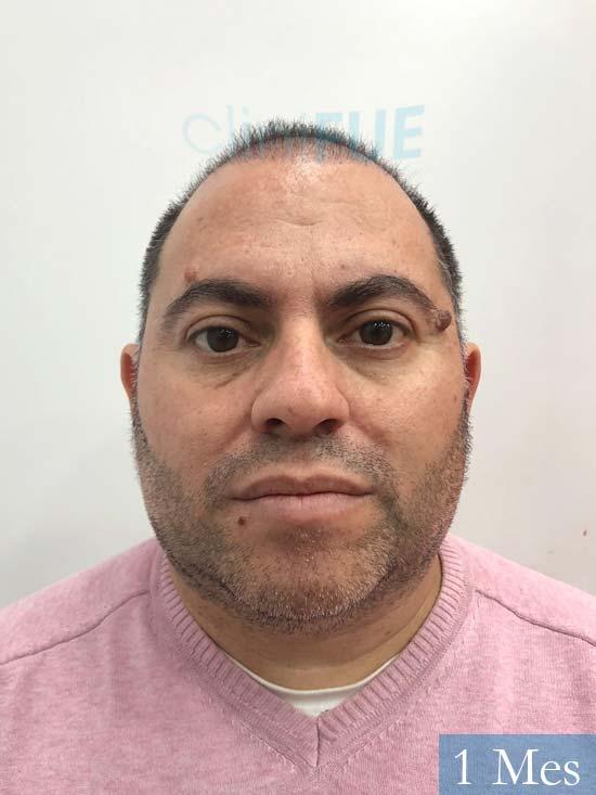 Ricardo injerto de pelo dia operacion 1 mes