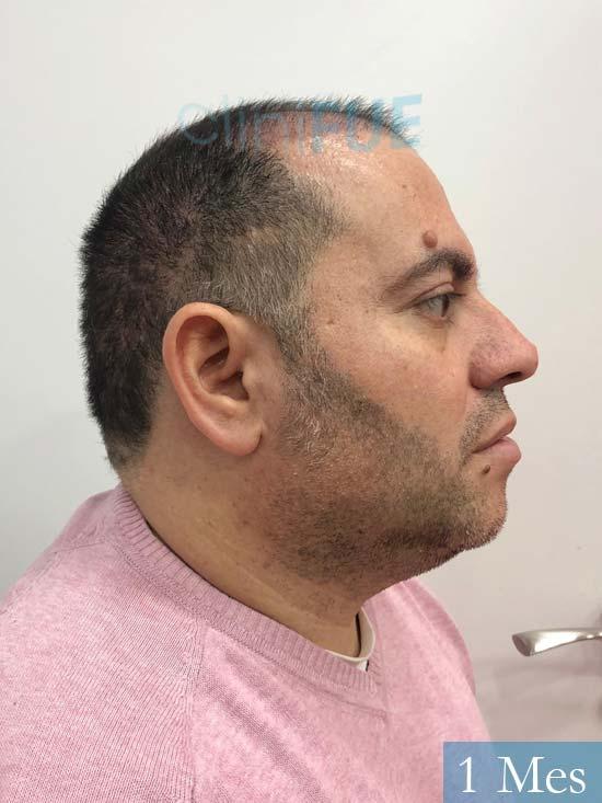 Ricardo injerto de pelo dia operacion 1 mes 3