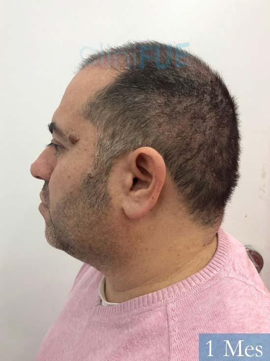 Ricardo injerto de pelo dia operacion 1 mes 4