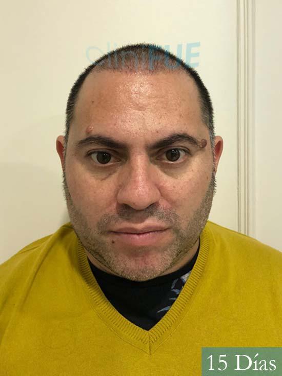 Ricardo injerto de pelo dia operacion 15 dias