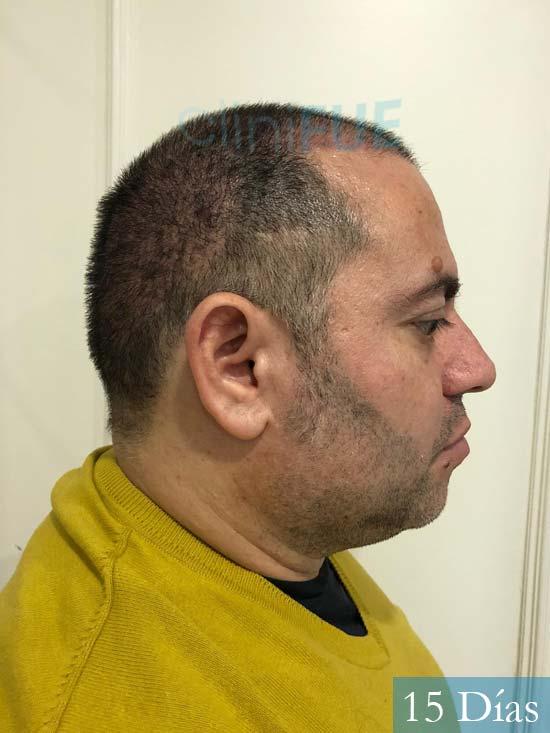 Ricardo injerto de pelo dia operacion 15 dias 3