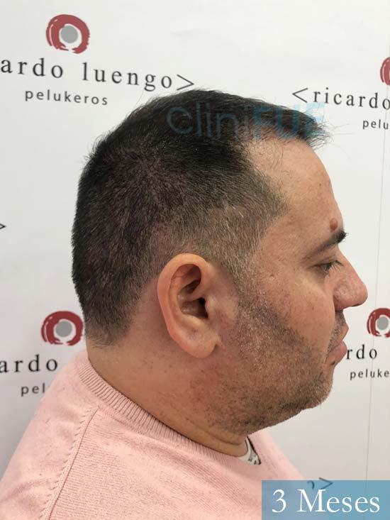 Ricardo injerto de pelo dia operacion 3 meses 3
