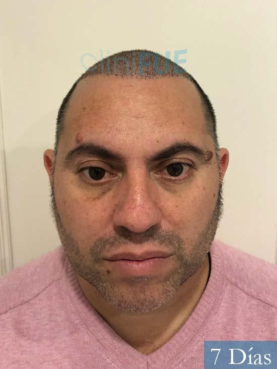 Ricardo injerto de pelo dia operacion 7 dias