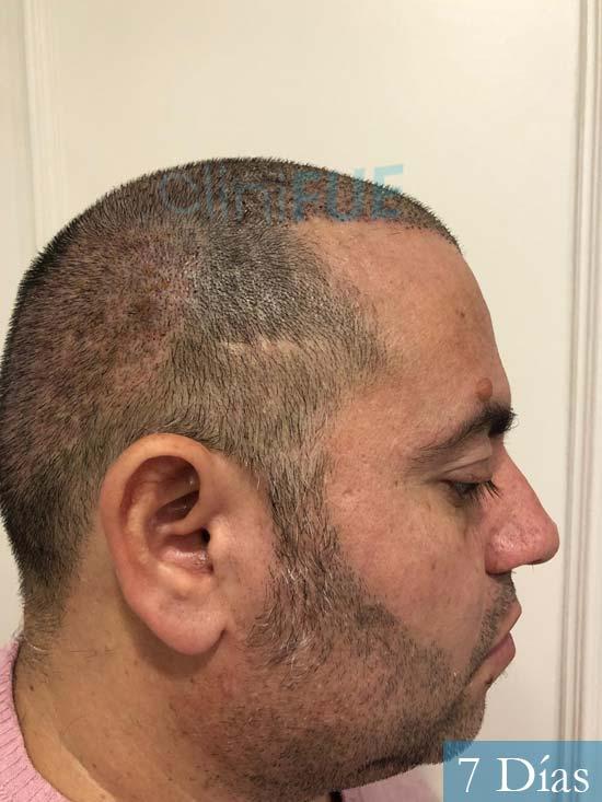 Ricardo injerto de pelo dia operacion 7 dias 4
