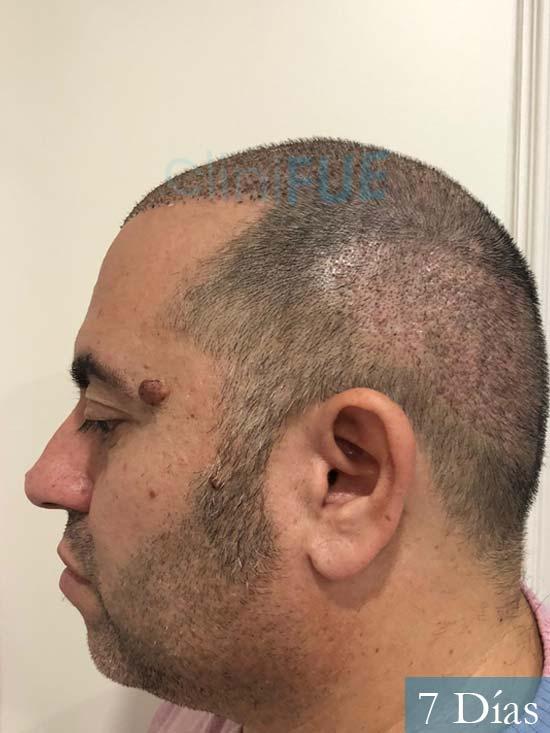 Ricardo injerto de pelo dia operacion 7 dias 6