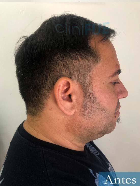 Daniel trasplante pelo antes 3