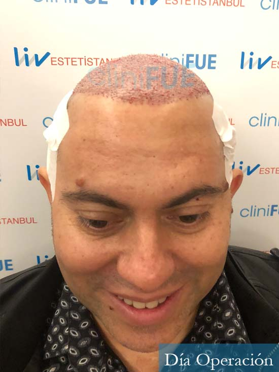 Ricardo 43injerto de pelo dia operacion