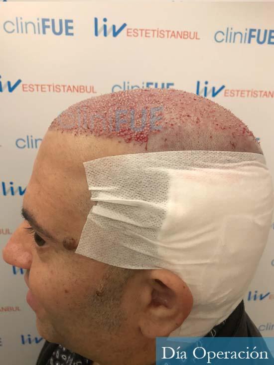 Ricardo 43injerto de pelo dia operacion 6