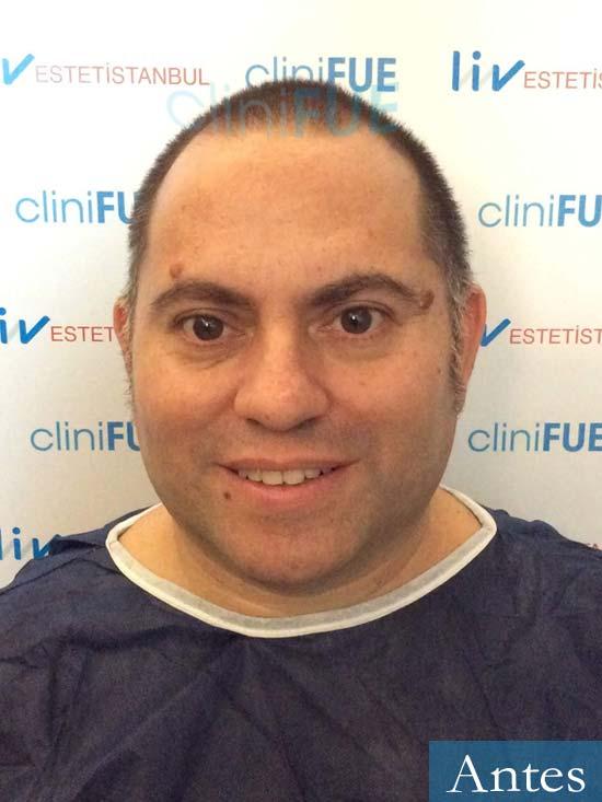 Ricardo trasplante pelo dia operacion antes 1