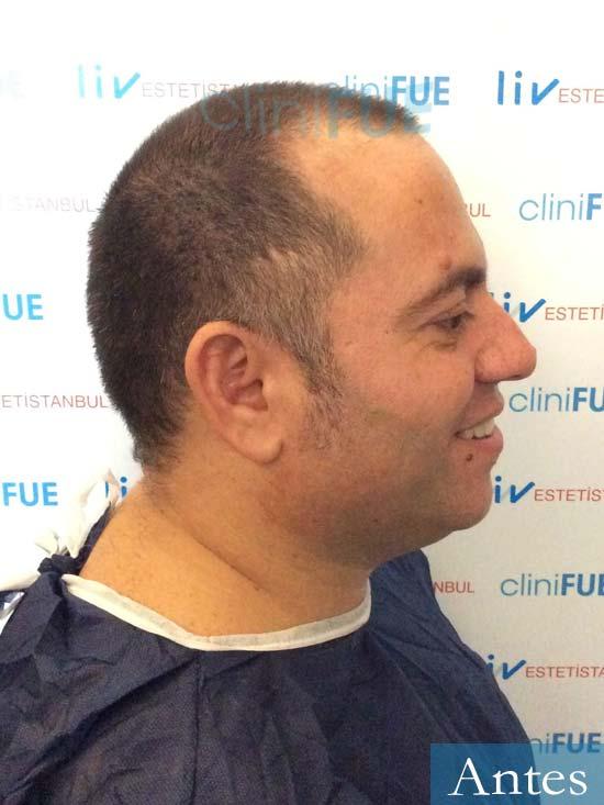 Ricardo trasplante pelo dia operacion antes 3