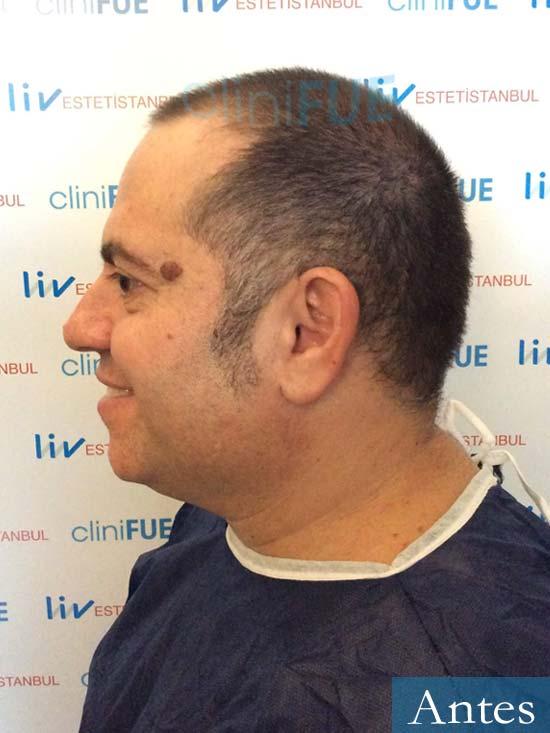Ricardo trasplante pelo dia operacion antes 4