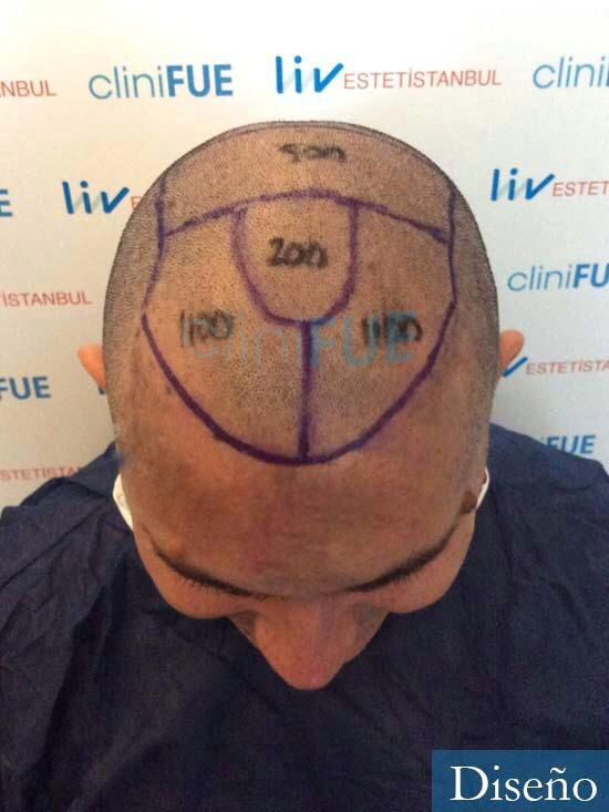 Ricardo 43injerto de pelo dia operacion diseno 4
