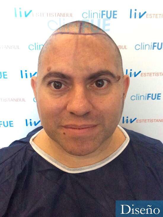 Ricardo 43injerto de pelo dia operacion diseno 3