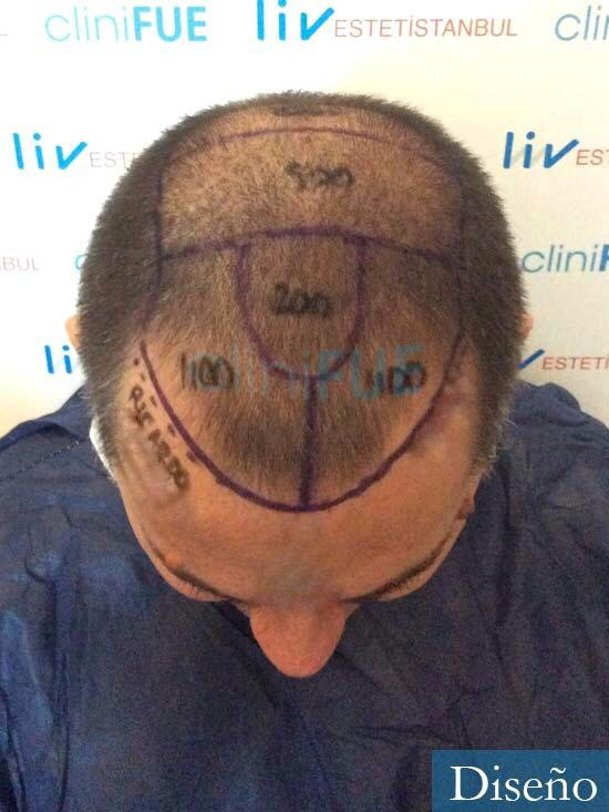 Ricardo 43injerto de pelo dia operacion diseno 2