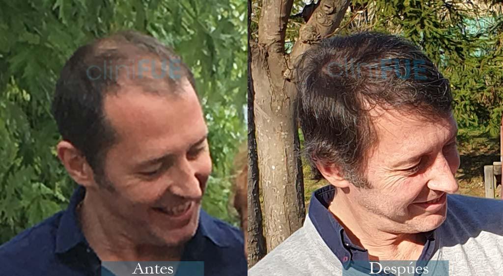 Trasplante capilar de Cristóbal Cavero 46 Años de Bilbao con cliniFUE