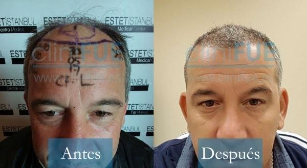 Trasplante capilar de Fernando 46 Años Málaga en Turquía con cliniFUE