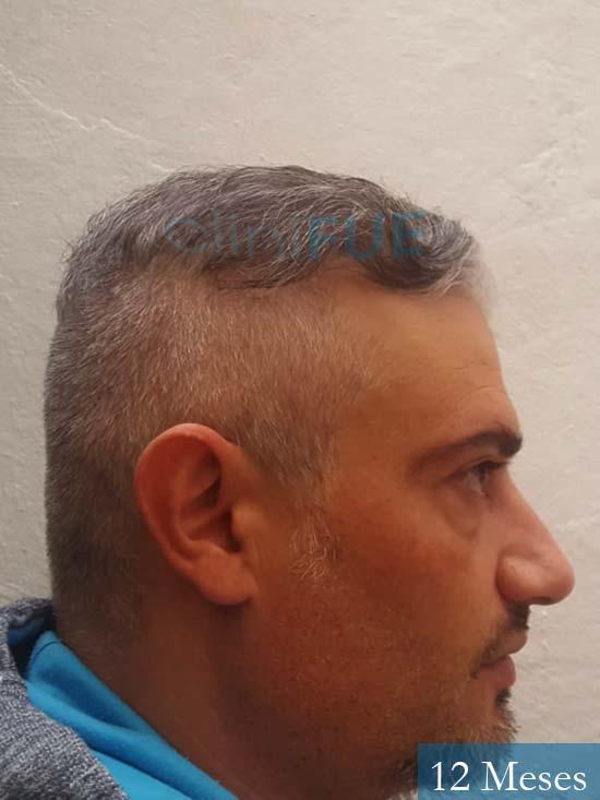 Francisco 38 Alicante injerto de pelo 12 meses 3