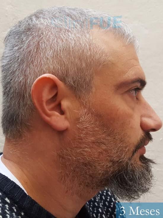 Francisco 38 Alicante injerto de pelo 3 meses 3