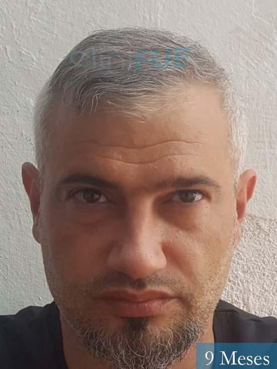 Francisco 38 Alicante injerto de pelo 9 meses
