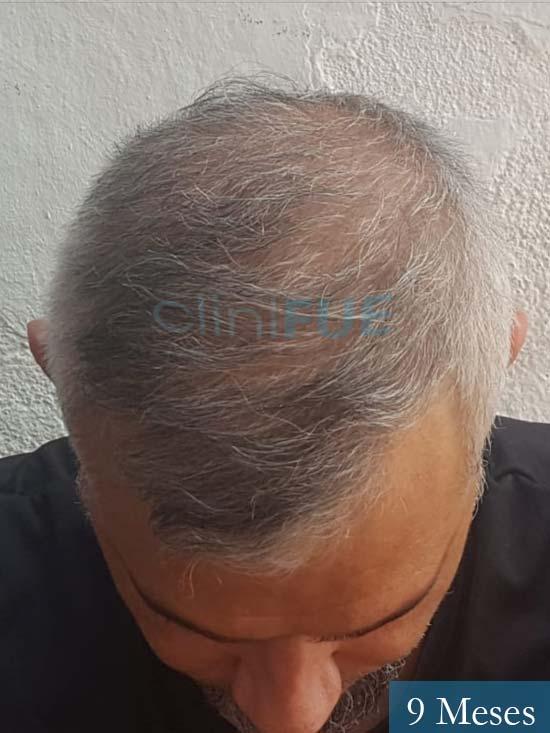 Francisco 38 Alicante injerto de pelo 9 meses 2