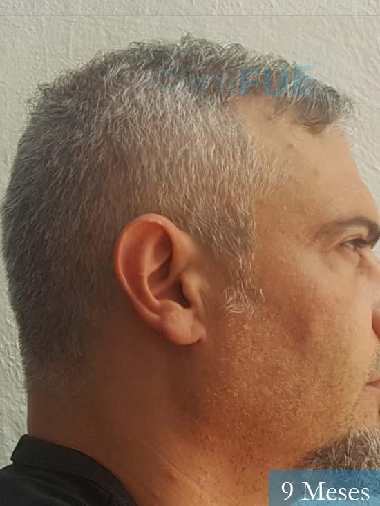 Francisco 38 Alicante injerto de pelo 9 meses 3