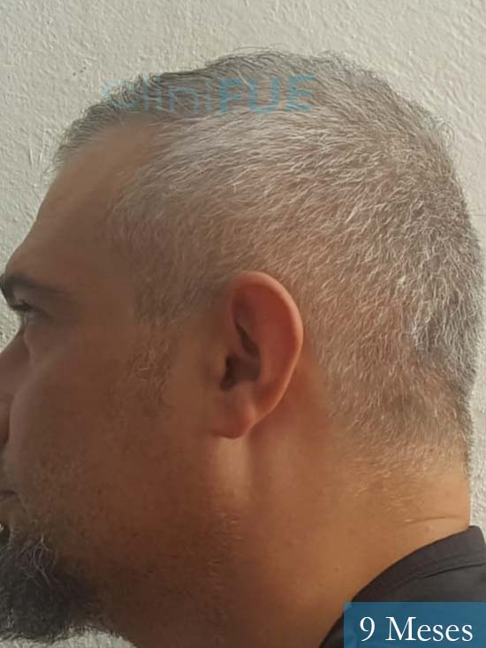 Francisco 38 Alicante injerto de pelo 9 meses 4