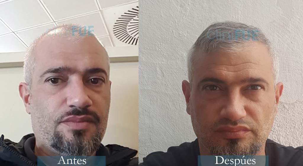 Injerto capilar de Francisco 38 Años de Alicante con cliniFUE