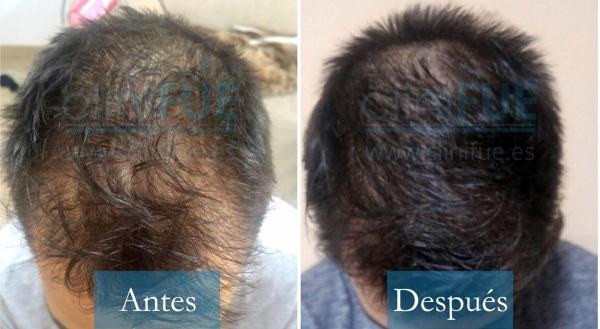Trasplante capilar de Guillermo 26 Años de Murcia con cliniFUE