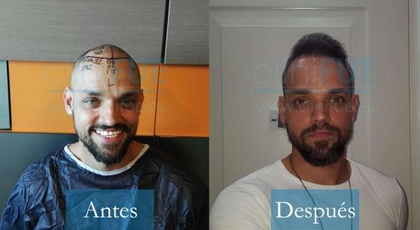 Trasplante capilar de Jonay 31 años Tenerife en Turquía con cliniFUE