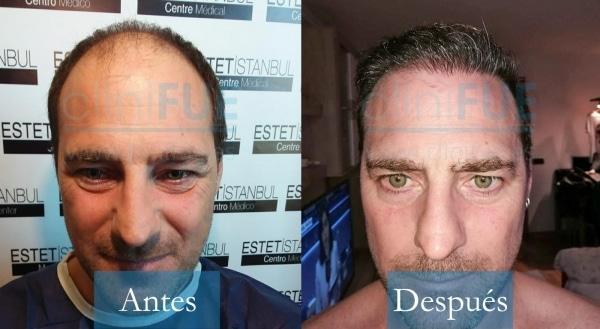 Trasplante capilar de José Luis 42 Años de Barcelona con cliniFUE