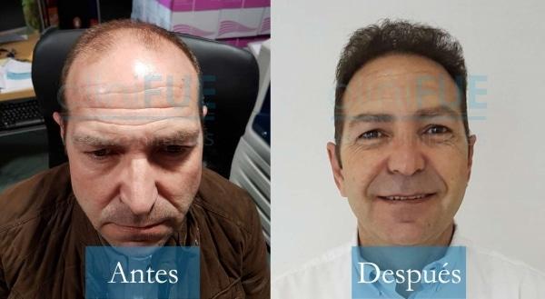 Trasplante capilar de José María 49 Años de Cáceres con cliniFUE