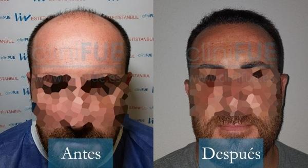 Trasplante capilar de Juan Antonio 41 Años de Málaga con cliniFUE