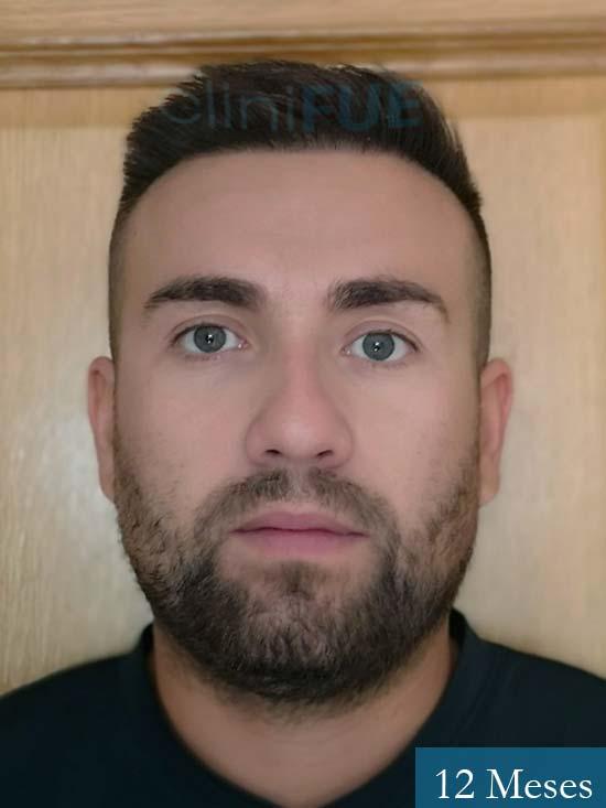 Carlos 30 Madrid injerto de pelo 12 meses 1